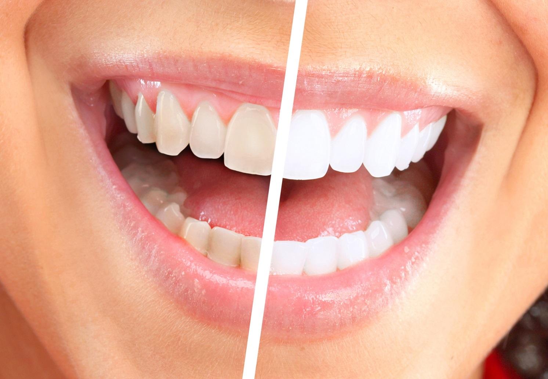 Як відбілити зуби в домашніх умовах легко і швидко! (Фото)