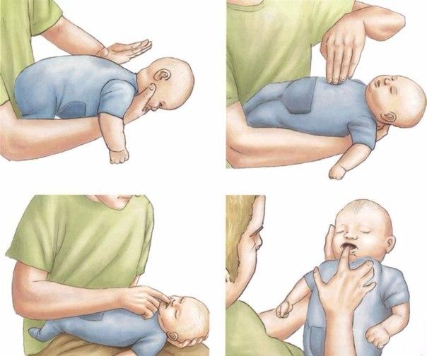 Якщо ваша дитина подавився, негайно зробіть це. Життєво важливо знати!