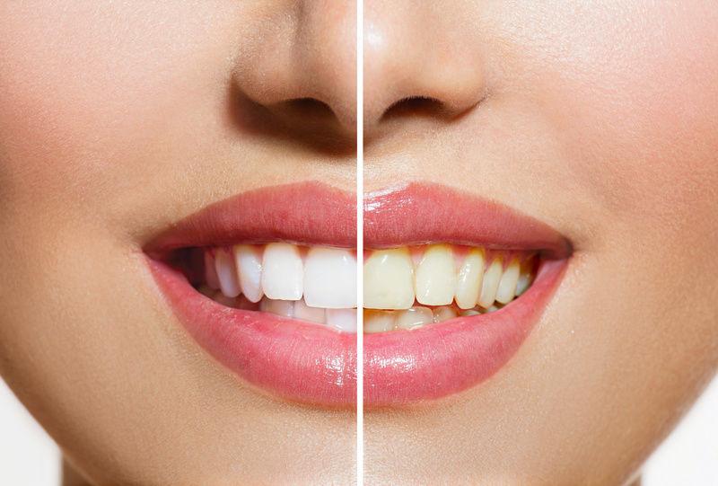 Якщо додати цю штуку в зубну пасту, ваші зуби завжди будуть білими! 100% результат