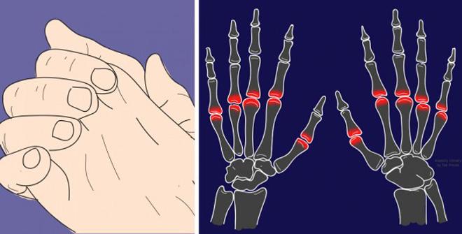 Нарешті стало відомо, безпечно хрустіти суглобами пальців чи ні