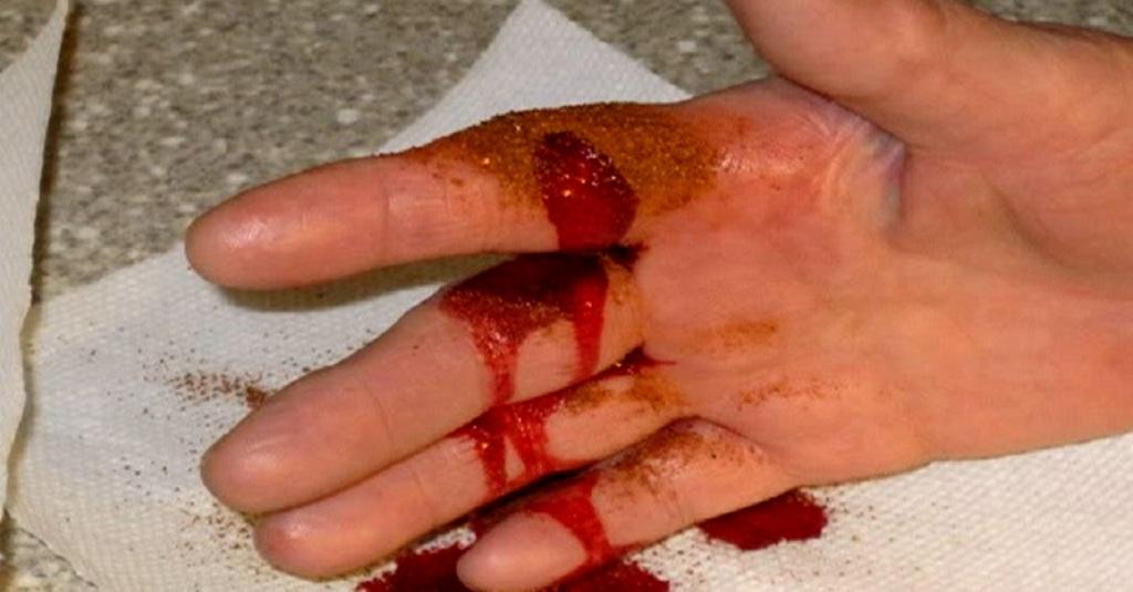 Трюк, який допоможе зупинити кровотечу за 10 секунд: безвідмовний метод!