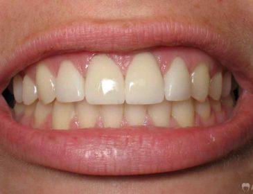 5 міфів про догляд за зубами
