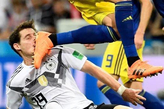 Шокуючі кадри: Німецькому гравцю в'їхали шипами в обличчя