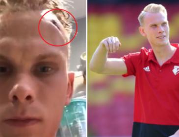 Молодий англійський футболіст отримав серйозну травму голови під час тренувань
